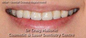 Dental Bridge By Dr Craig Mallorie After