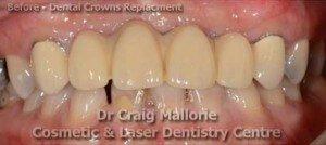Dental Bridge By Dr Craig Mallorie Before 2