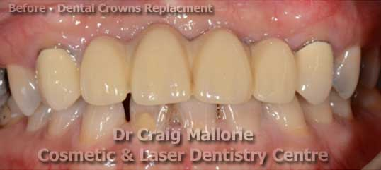 Dental Bridge Replacement - Before