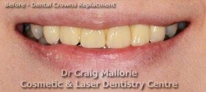 Dental Bridge By Dr Craig Mallorie Before