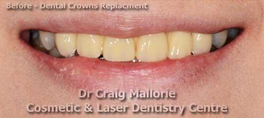 Dental Bridge Replacments - Before