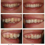 Inman Aligners, Whitening and Composite Bonding