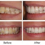 Inman Aligners - Upper crowding corrected in only 7 weeks