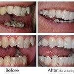 Inmam Aligners - Upper teeth in 8 weeks, lowers in 6