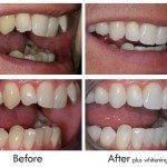 Inmam Aligners - Upper teeth in 8 weeks, lowers in 6