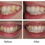 Inman Aligners and Composite Bonding