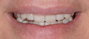 Cosmetic Dentistry - Case 3 after