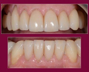 Cosmetic Dentistry - Case 3 after - Arches