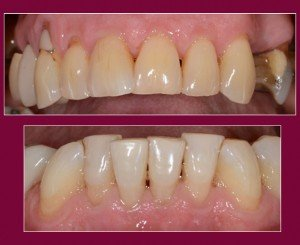 Cosmetic Dentistry - Case 3 before - Arches