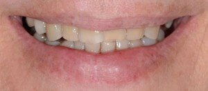Cosmetic Dentistry - Case 3 before