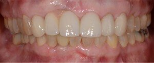 Cosmetic Dentistry Case 5 - After
