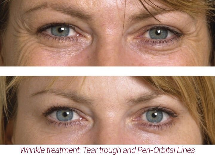 Wrinkle Injectables and Dermal Fillers
