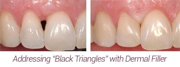 dermal filler black triangle