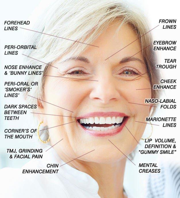 Anti Wrinkle Dentistry And Dermal Fillers Melbourne