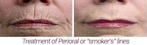 perioral lines