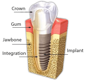 implant diagram21