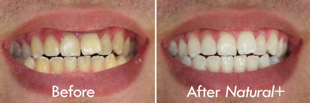 before after natural whitening