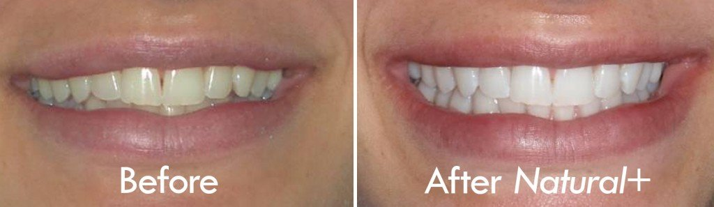 before after natural whitening female