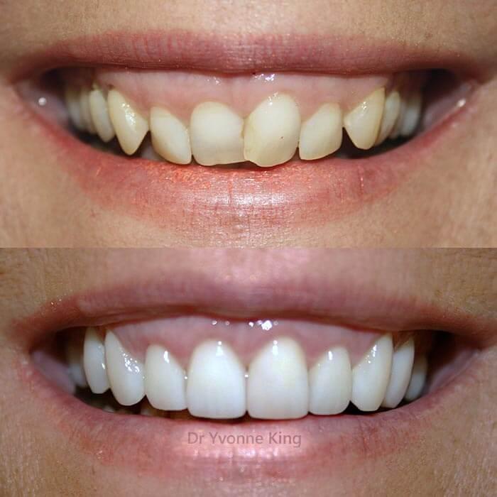 Glamsmile Veneers Porcelain Veneers Dental Veneers
