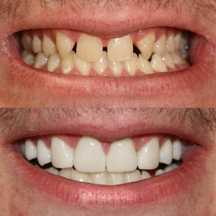 male porcelain veneers