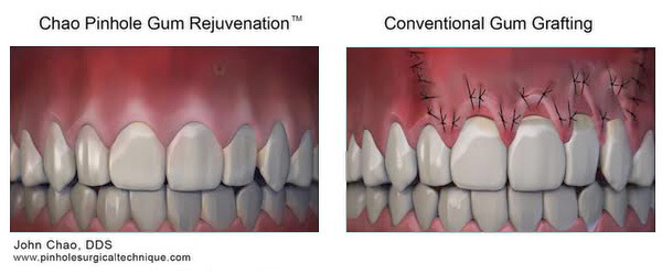 comparison-pinhole-to-gum-grafting