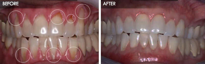 gum-recession-pinhole-surgery-before-after