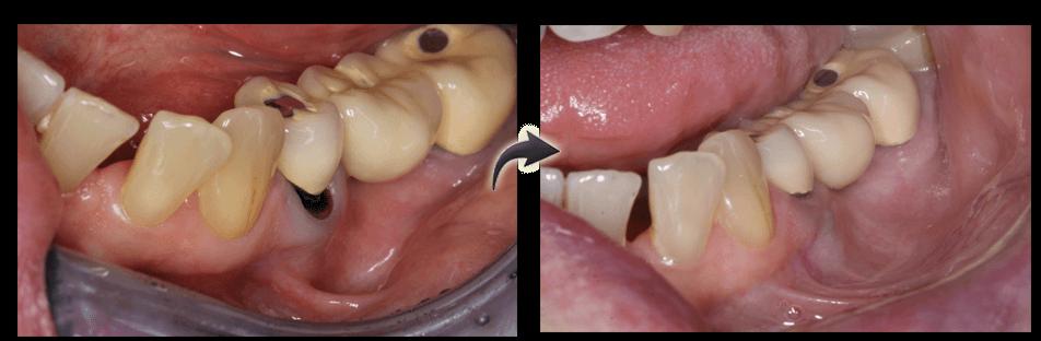 pinhole and implants
