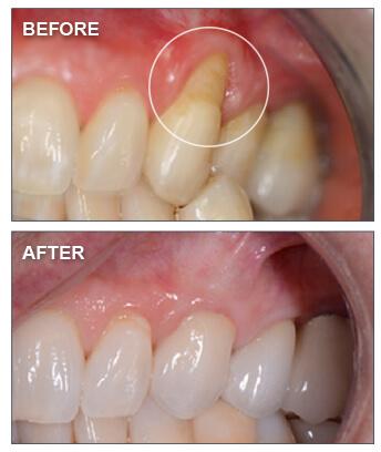 Gum Recession Treatment Pinhole Gum Surgery