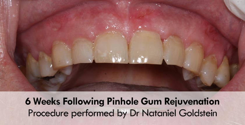 nataniel-pinhole-gum-surgery-case-after