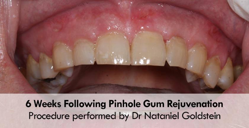 Pinhole 174 Gum Recession Surgery Pst For Receding Gums