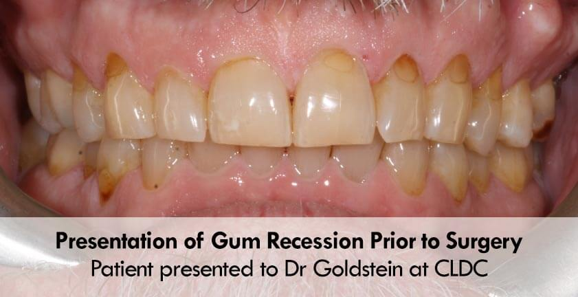 Pinhole 174 Gum Recession Surgery Pst For Receding Gums