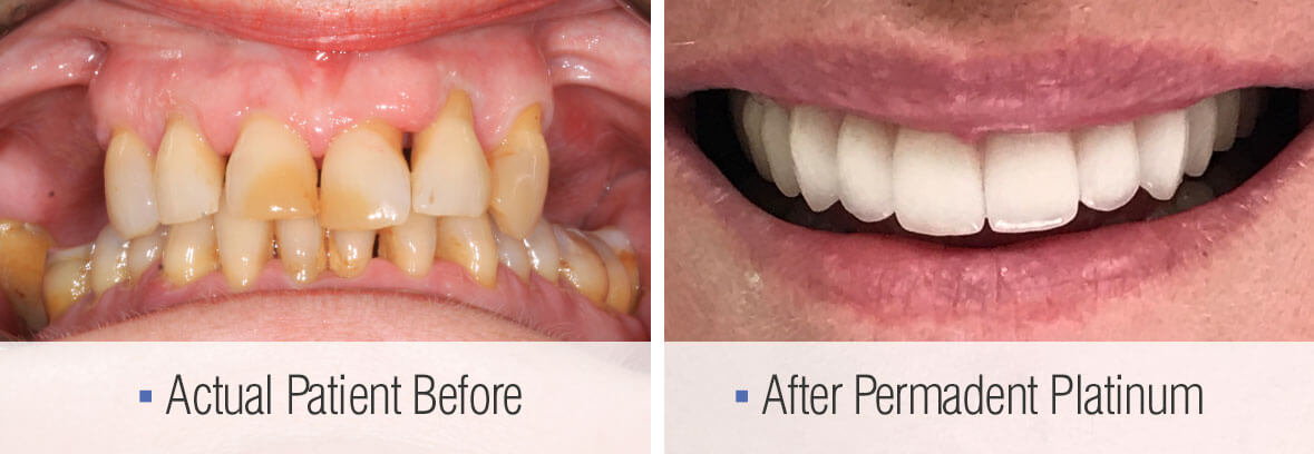 before-after-permadent-platinum-zirconia-bridge