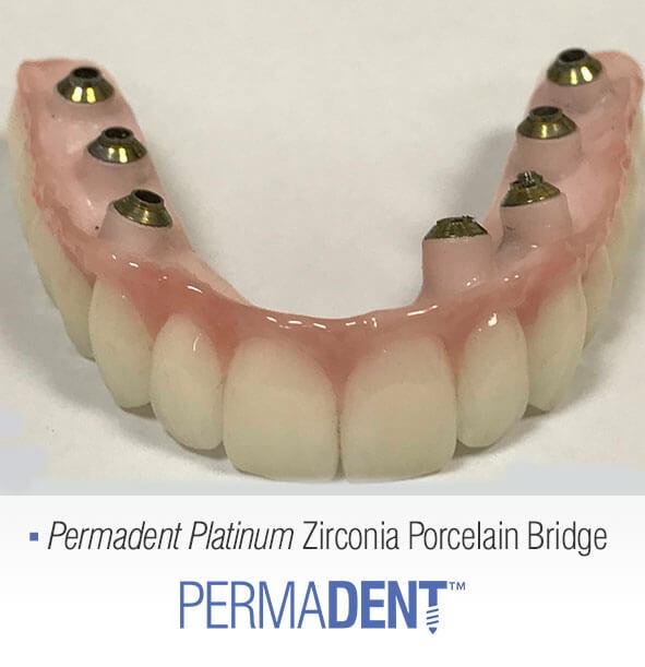 full-zirconia-permadent-platinum-bridge2