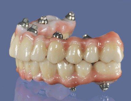 Permadent Platinum Zirconia Bridge On 6 To 8 Implants