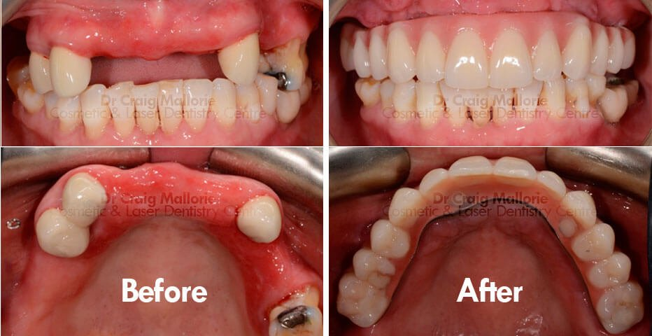 All On 4 Dental Implants Cosmetic Amp Laser Dentistry Centre