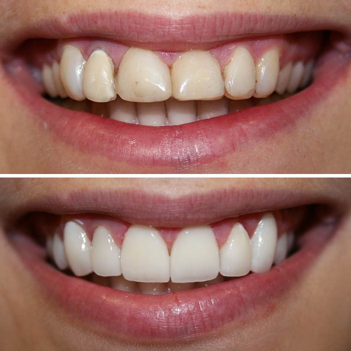 Before & After Smile Gallery | CLDC